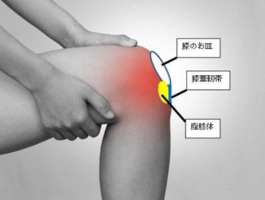 膝蓋下脂肪体